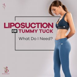 Liposuction in Andheri