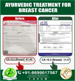 Ayurvedic Treatment for Breast Cancer