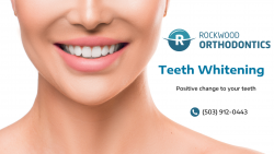 Whitening Solutions for a Sparkling Smile