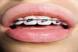 braces alternative