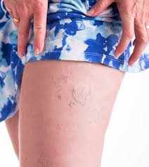 Experience the Best Quality Spider Vein Treatment in NYC at the Vein Treatment Clinic