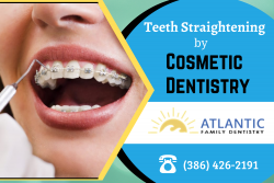 Achieve an Attractive Smile with Teeth Straightening Treatments
