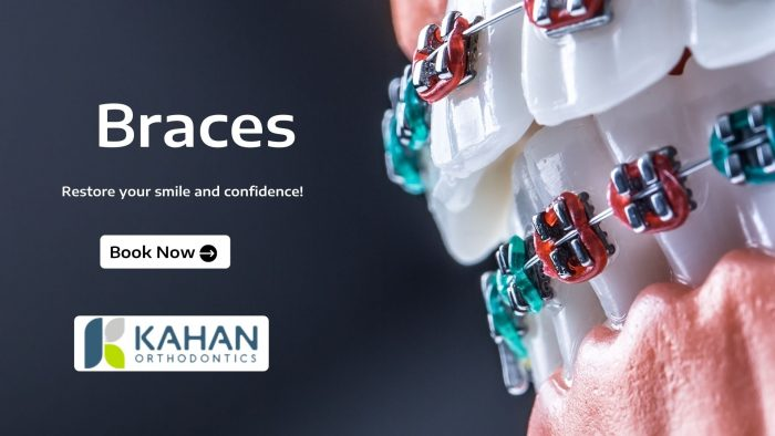 Achieve Your Perfect Smile with Braces