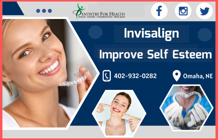 Align your Teeth Without Braces