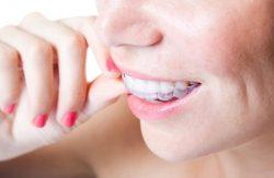 Orthodontic Options Aventura