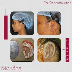 Best Ear Surgeon in Mumbai, India | Top Ear Surgeon