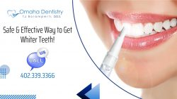 Effective Way to Get Rid of Tooth Stains