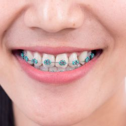 Your Best Rated Orthodontist Near Me in Maimi for Great Health