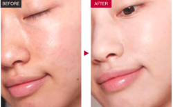Improve The Quality Of Skin With Mesotherapy