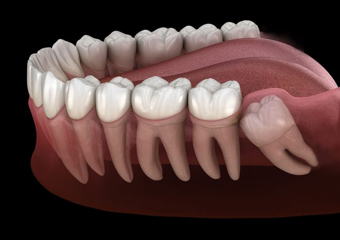How Long Does It Take For Wisdom Teeth To Heal?
