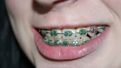 Finding Great Pediatric Orthodontist in Miami Means Great Smiles for Life