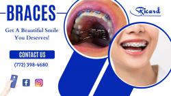 Incremental Adjustments To Shape Teeth