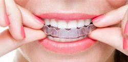 Aventura Teeth Braces Cost
