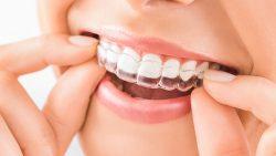 Dental Night Guard for Teeth Grinding
