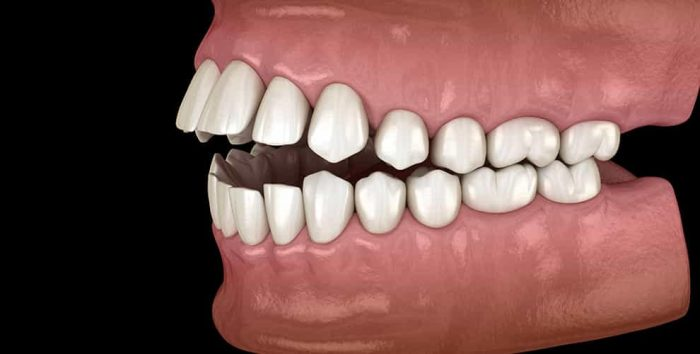Treatment for Open Bite: Orthodontic Alignment or Corrective Jaw Surgery