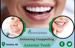 Rebuild your Smile with Dental Veneers