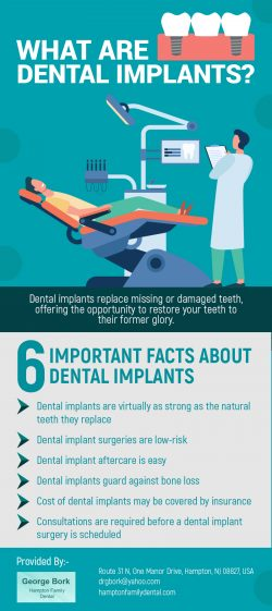 Replace Your Missing Teeth with Dental Implants in Hampton, NJ from Dr George Bork