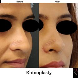 Rhinoplasty Surgeon in Andheri