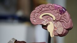 Joel Michael Singer Procedures to Treat Neurologic Conditions