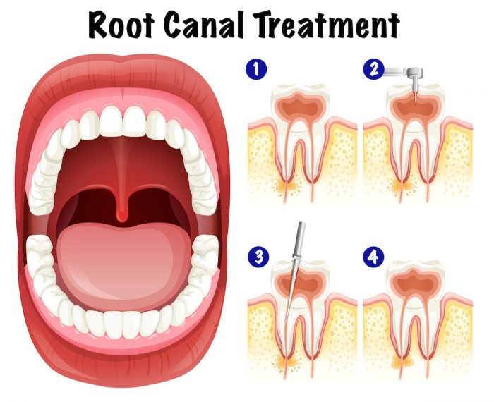 Root Canal Specialist Houston