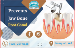 Save a Natural Teeth by Root Canal