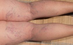 Spider Veins are Clinic in the Near Me