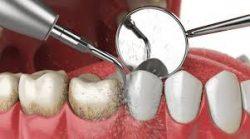 Dentist Open On Saturday