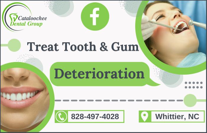 Teeth Deterioration Procedure for a Lasting Smile