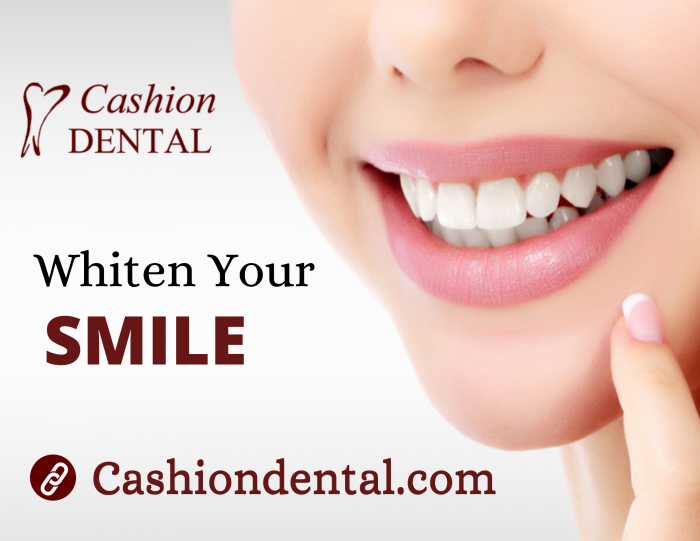 Painless Way to Make Your Teeth Brighter