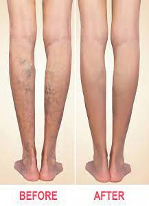 Varicose are Veins Treatment in the Near Me
