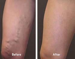 Vein Treatment are Clinic in the Near Me