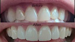 Teeth Veneers Houston TX