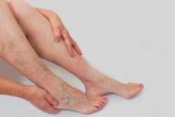 Venous Insufficiency: Injection Sclerotherapy