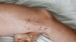What happens if you don't seek varicose vein treatment?