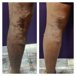Does insurance pay for varicose vein treatment?