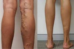 Is sclerotherapy for varicose veins painful?