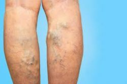 Avoid vein doctors and vein centers that recommend vascular surgery.