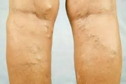 Go through the state-of-the-art vein centers' varicose vein treatment options.