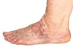 The Minimally Invasive Varicose Vein Treatments
