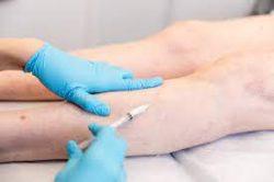 Vein Clinic Midtown that Offers Minimally-Invasive Treatments