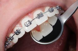 INVISALIGN ALIGNERS AND RETAINERS FOR STRAIGHT TEETH