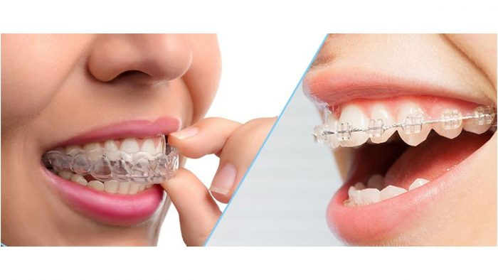 AVERAGE COST OF INVISALIGN And BRACES