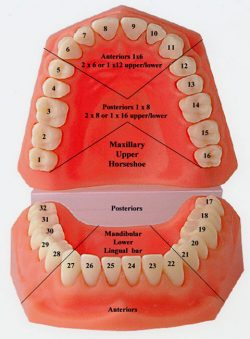 WHAT ARE THE TOOTH NUMBERS?