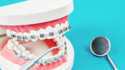 THE BEST AGE FOR BRACES