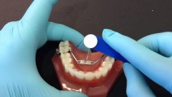DOES PALATAL EXPANSION WORK IN ADULTS?