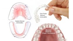 FIND THE BEST TOP-RATED ORTHODONTIST NEAR ME