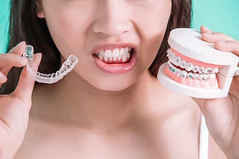 DO CLEAR ALIGNERS REALLY WORK FOR TEETH ALIGNMENT?