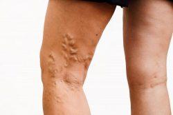 Cosmetic Vein Treatment