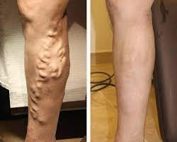 Vein treatment must be done only by trained phlebologists