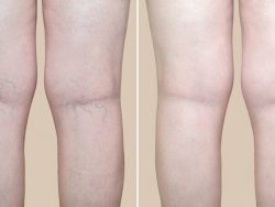 Spider Vein Removal Process